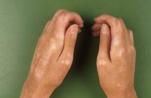 viziune cu sclerodermie